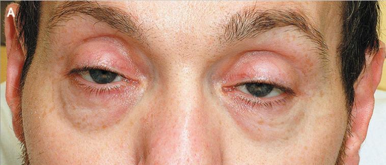 Симптомы приема опиоидов