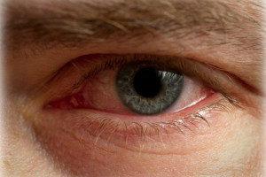 Симптомы употребления курительных смесей